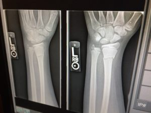x-ray-1273382_960_720