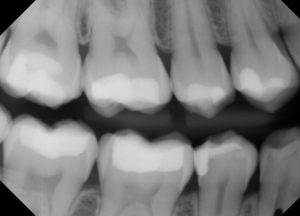 Big fillings like this will probably be sensitive for a little while.