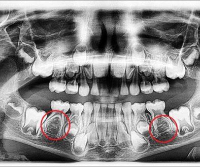 missing-premolars