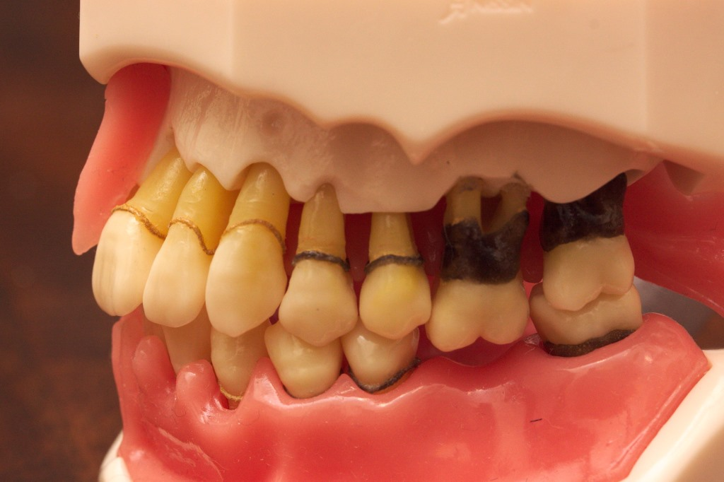Scaling And Root Planing Deep Cleaning The Healthy Mouth Project