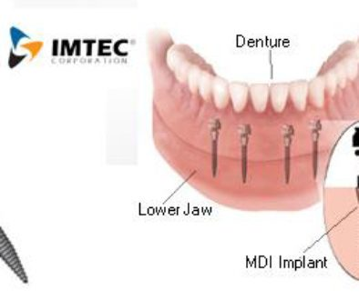 Denture adjustments the healthy mouth project are mini implants any good denture solutioingenieria Images