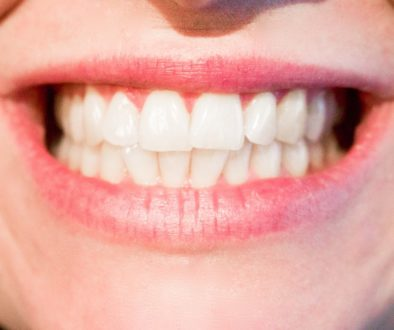 Change Invisalign Trays Every Week? | The Healthy Mouth Project